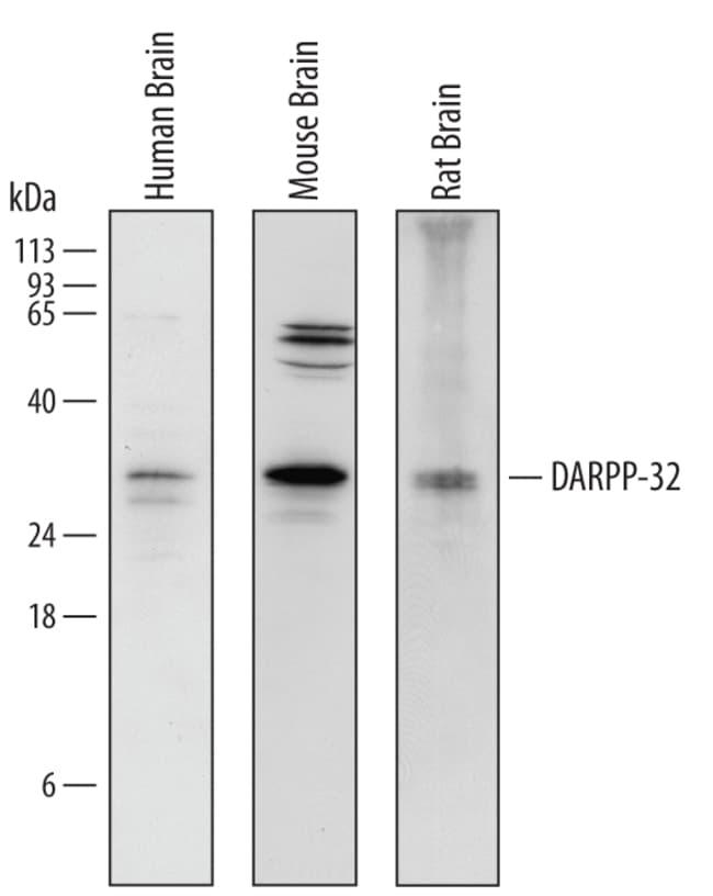 DARPP-32 Goat anti-Human, Mouse, Rat, Polyclonal, R 25µg; Unlabeled:Life