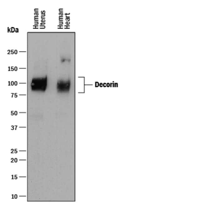 Decorin Mouse anti-Human, Clone: 115402, R 25µg; Unlabeled:Life Sciences