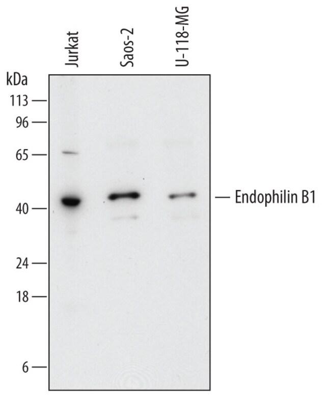Endophilin B1/Bif-1 Sheep anti-Human, Polyclonal, R 100µg; Unlabeled