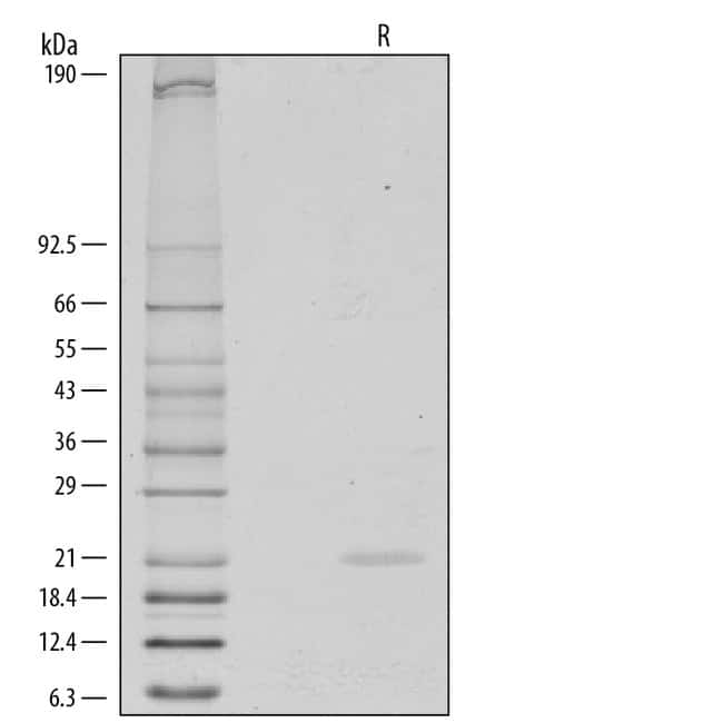 R Human FGF-8 a Isoform Recombinant Protein  50ug; Carrier Free:Life Sciences