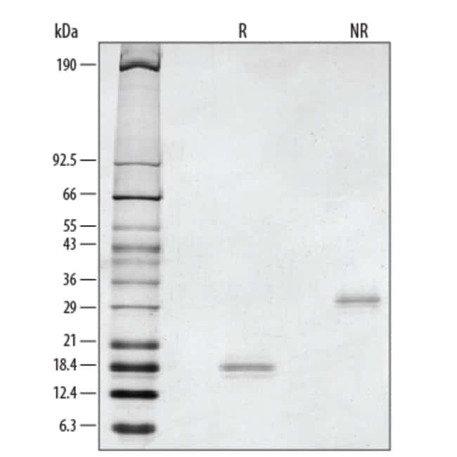 R Rat GDNF Recombinant Protein 50ug; Carrier Free:Life Sciences