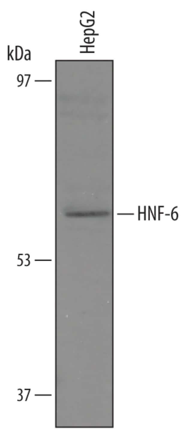 HNF-6/ONECUT1 Sheep anti-Human, Polyclonal, R 100µg; Unlabeled