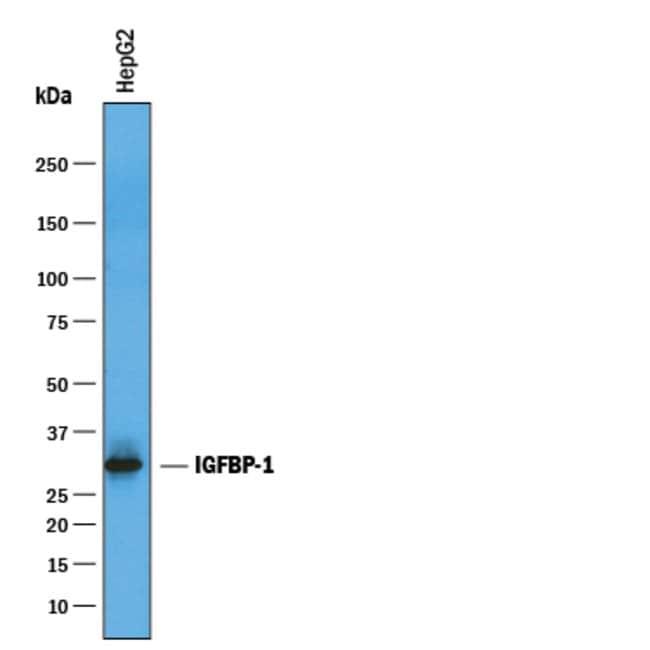 IGFBP-1 Goat anti-Human, Polyclonal, R 100µg; Unlabeled