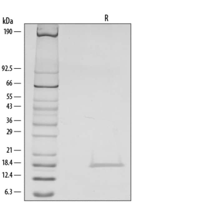 R&D Systems™Human IL-1 beta/IL-1F2 Recombinant Protein 5ug; Carrier Free R&D Systems™Human IL-1 beta/IL-1F2 Recombinant Protein