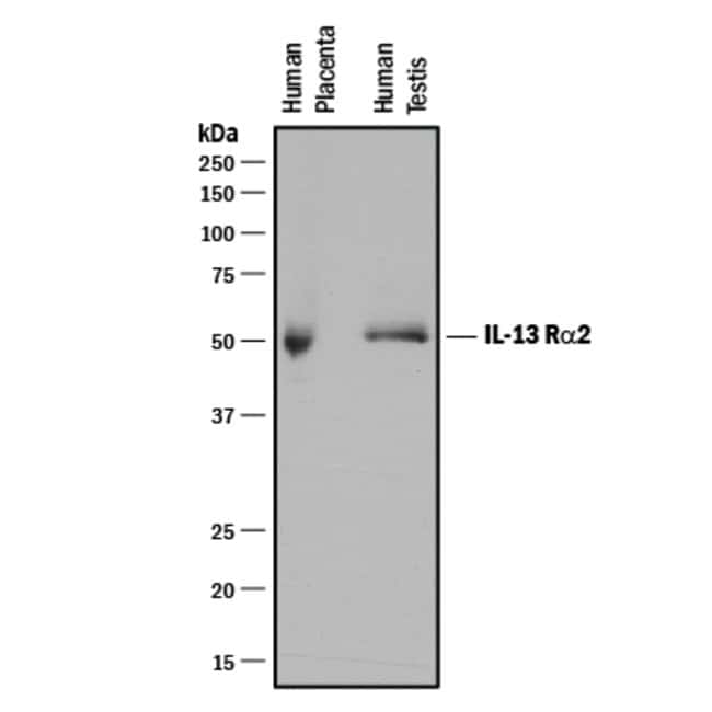 IL-13 R alpha 2 Mouse anti-Human, Clone: 83834, RD Systems:Antibodies:Primary