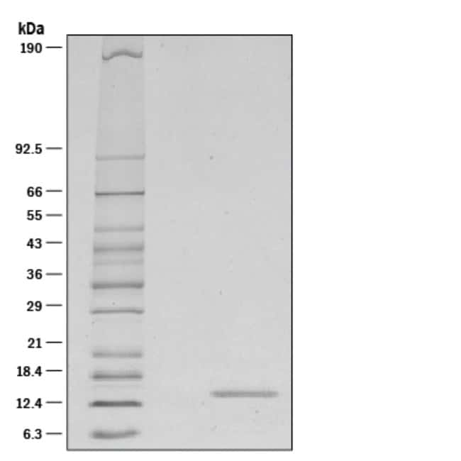 R&D Systems™Mouse IL-21 Recombinant Protein 10ug; Carrier Free R&D Systems™Mouse IL-21 Recombinant Protein