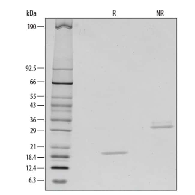 RD SystemsHuman M-CSF Recombinant Protein:Biochemical Reagents:Proteins