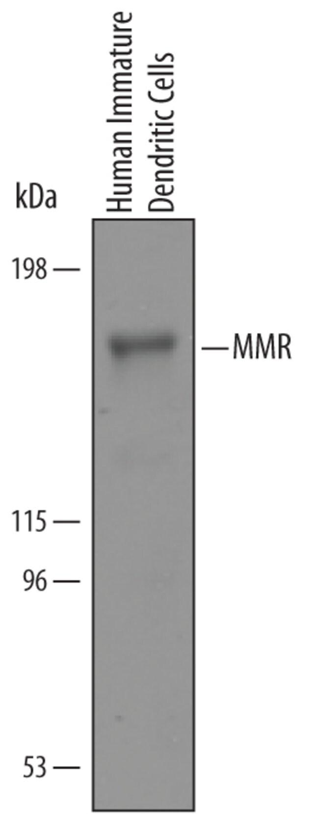 MMR/CD206 Goat anti-Human, Polyclonal, R 25µg; Unlabeled:Life Sciences