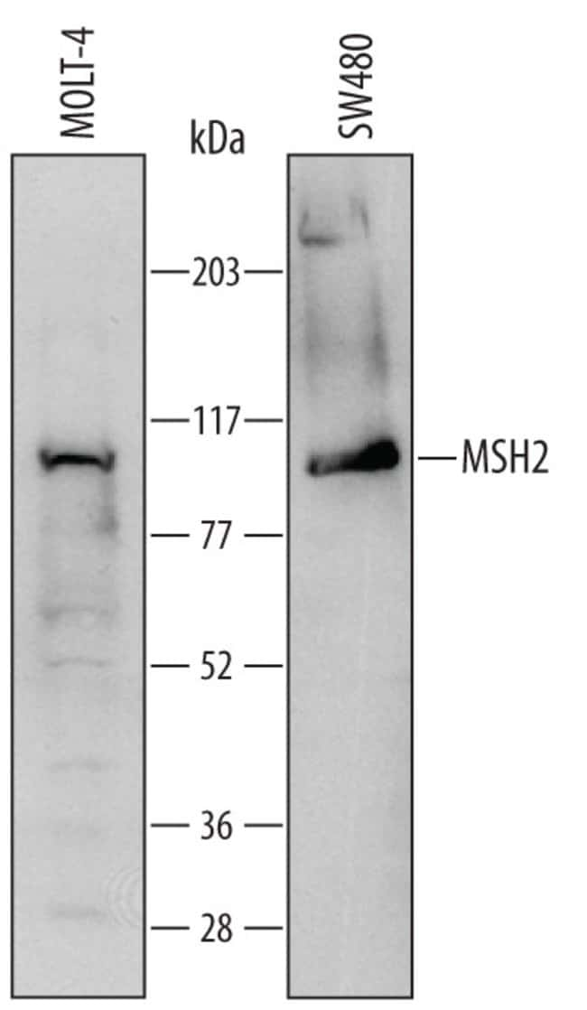 MSH2 Sheep anti-Human, Polyclonal, RD Systems 100μg; Unlabeled:Antibodies