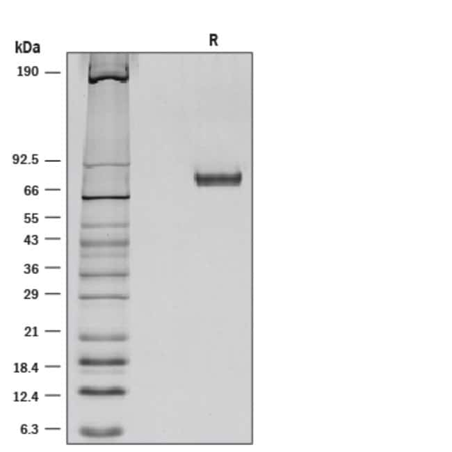 R&D Systems™Mouse Netrin-1 Recombinant Protein 25ug R&D Systems™Mouse Netrin-1 Recombinant Protein