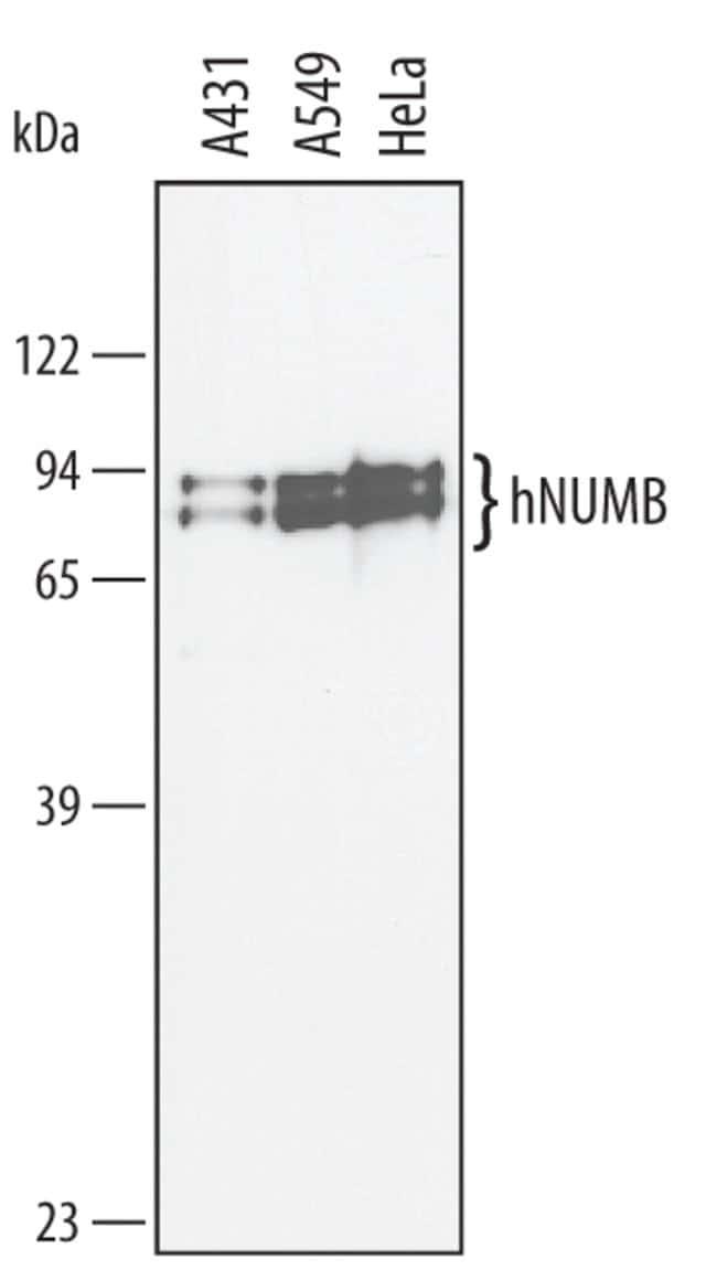 Numb Sheep anti-Human, Polyclonal, R 25µg; Unlabeled:Life Sciences