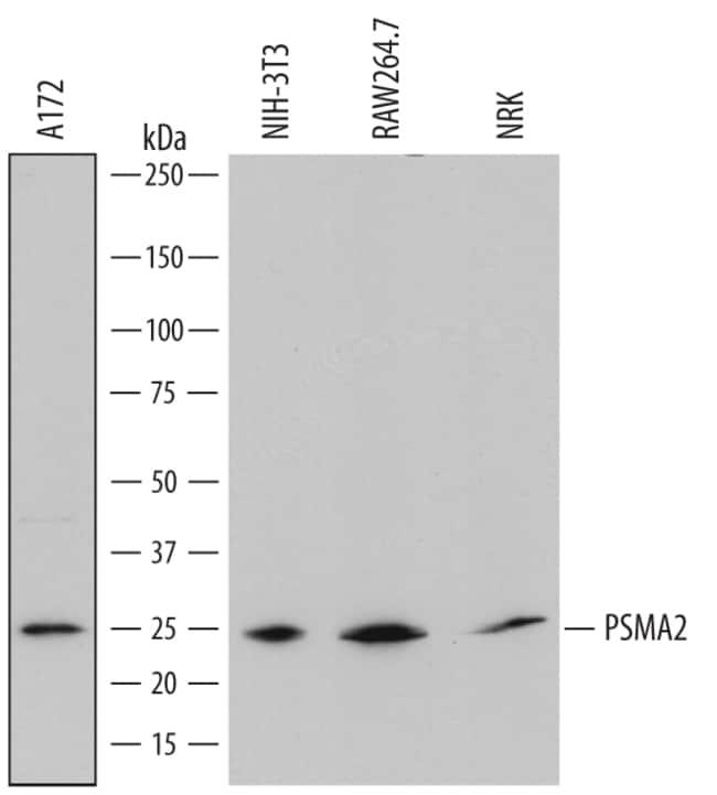 PSMA2 Sheep anti-Human, Mouse, Rat, Polyclonal, R 100µg; Unlabeled