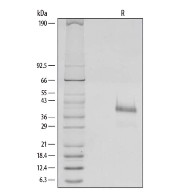 R Human R-Spondin 1 Recombinant Protein  25ug; Carrier Free:Life Sciences