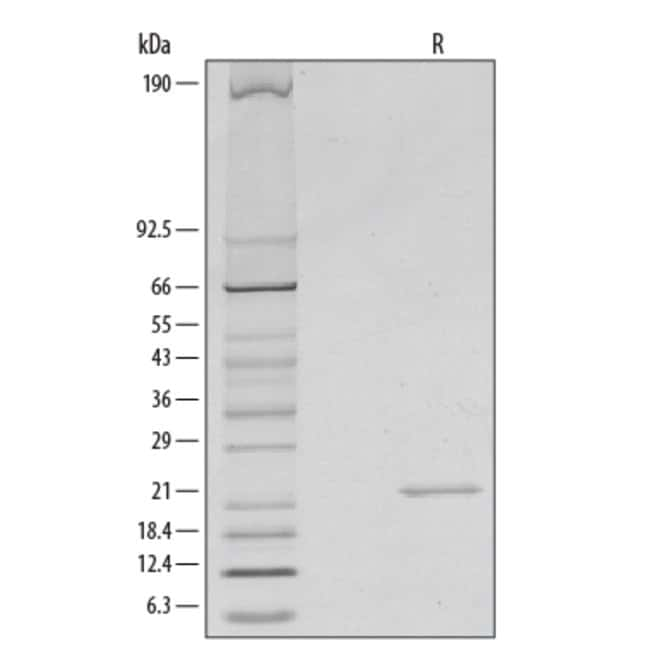 R Mouse Sonic Hedgehog/Shh N-Terminus Recombinant Protein  25ug:Life Sciences