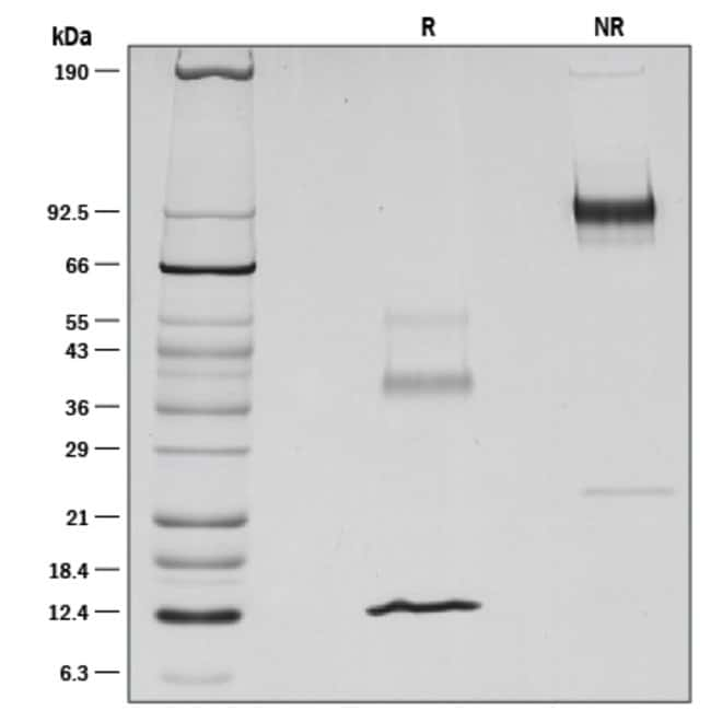 R&D Systems™Human Latent TGF-beta 1 Recombinant Protein 5ug R&D Systems™Human Latent TGF-beta 1 Recombinant Protein