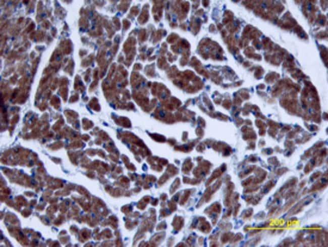 TGF-beta 3 Mouse anti-Multi-species, Clone: 44922, RD Systems:Antibodies:Primary