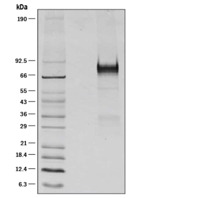 R Mouse Thrombopoietin/Tpo Recombinant Protein  25ug; Carrier Free:Life