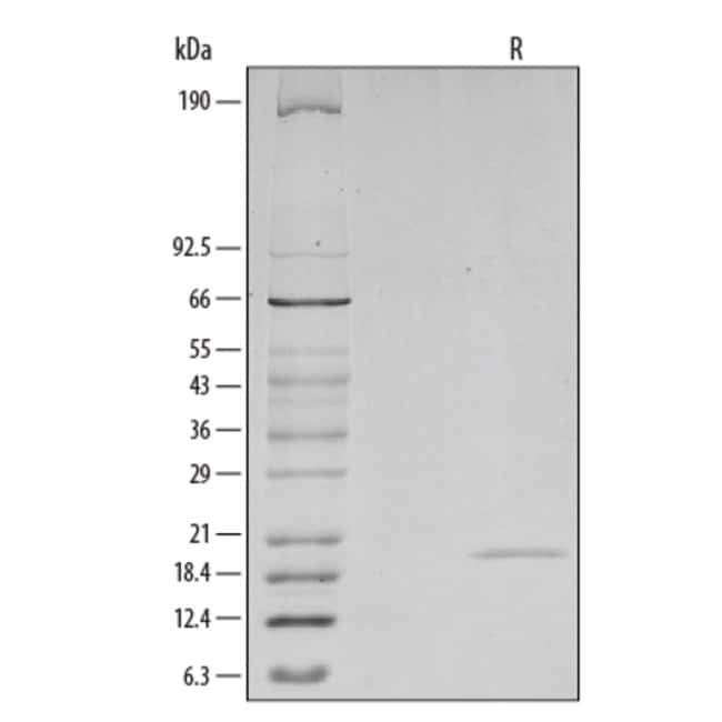R Mouse TRANCE/TNFSF11/RANK L Recombinant Protein, (E. coli-expressed)