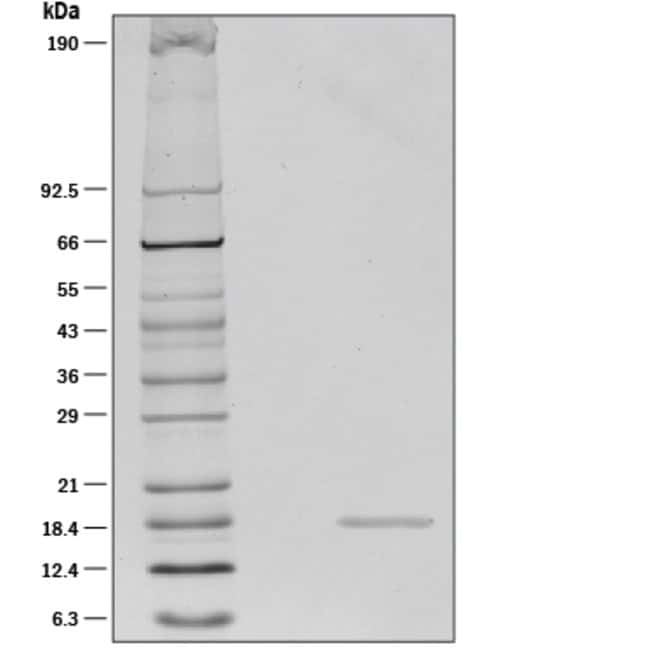 R Human TWEAK/TNFSF12 Recombinant Protein:Life Sciences:Protein Biology