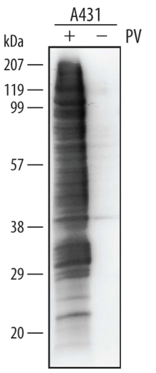 Phospho-Tyrosine Mouse anti-Multi-species, Clone: 179003, RD Systems:Antibodies:Primary