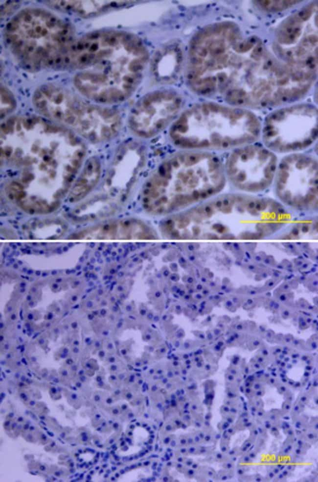 VEGF R2/KDR/Flk-1 Mouse anti-Human, Clone: 89115, RD Systems:Antibodies:Primary