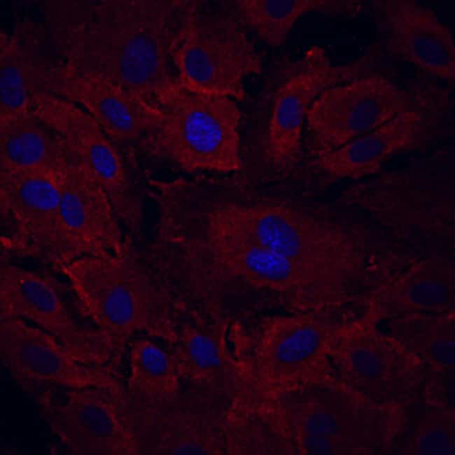 VEGF R3/Flt-4 Mouse anti-Human, Clone: 54703, RD Systems:Antibodies:Primary