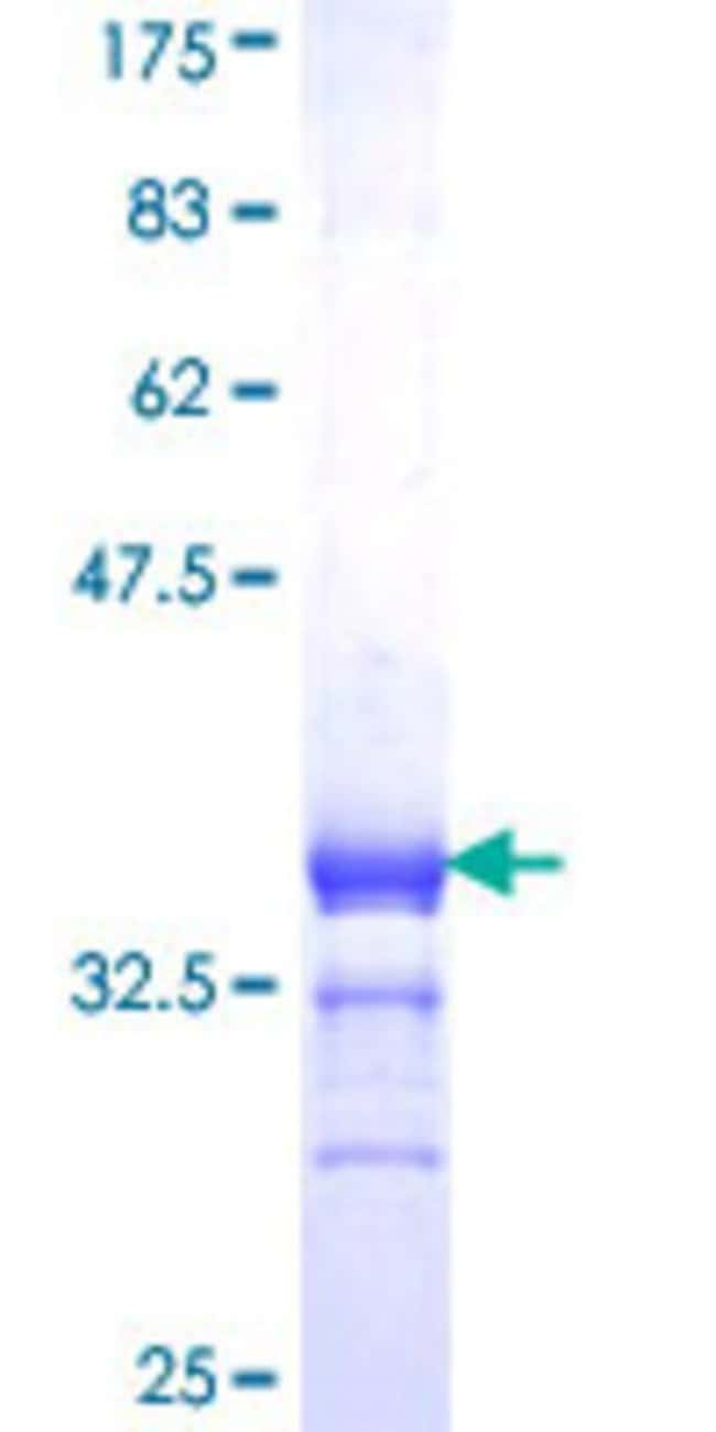AbnovaHuman RXRG Partial ORF (NP_008848, 1 a.a. - 75 a.a.) Recombinant