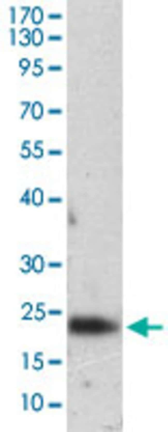 FTL Mouse anti-Human, Clone: 8E1E7, Abnova 100μg; Unlabeled:Antibodies