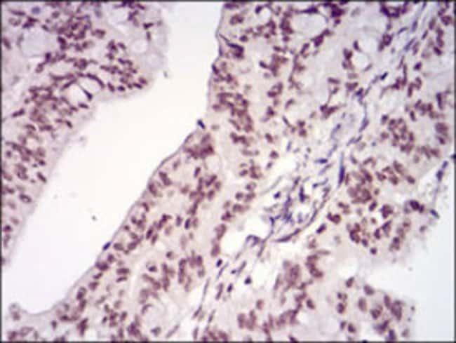 MEN1 Mouse anti-Human, Clone: 7D3E10, Abnova 100μg; Unlabeled:Antibodies