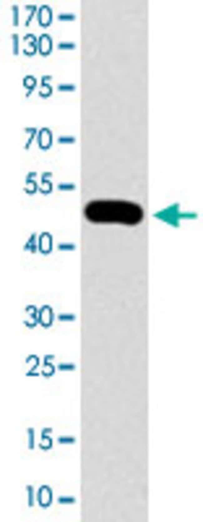 CTNNBL1 Mouse anti-Human, Clone: 1E4F5, Abnova 100μg; Unlabeled:Antibodies