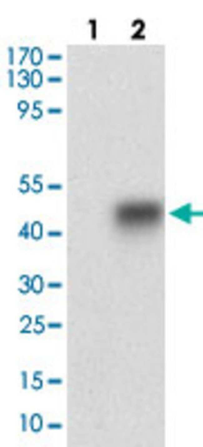 SMCP Mouse anti-Human, Clone: 5C10D8, Abnova 100μg; Unlabeled:Antibodies