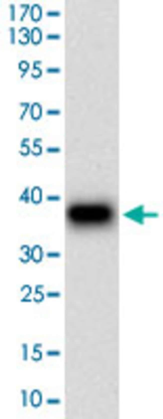 DSG3 Mouse anti-Human, Clone: 6G2C11, Abnova 100μg; Unlabeled:Antibodies