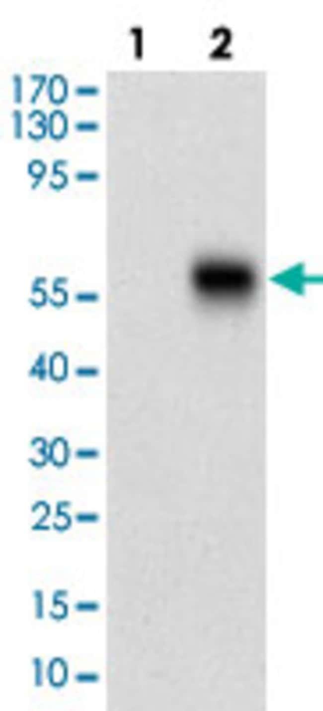 CAMK2G Mouse anti-Human, Rat, Clone: 8G10C1, Abnova 100μg; Unlabeled:Antibodies