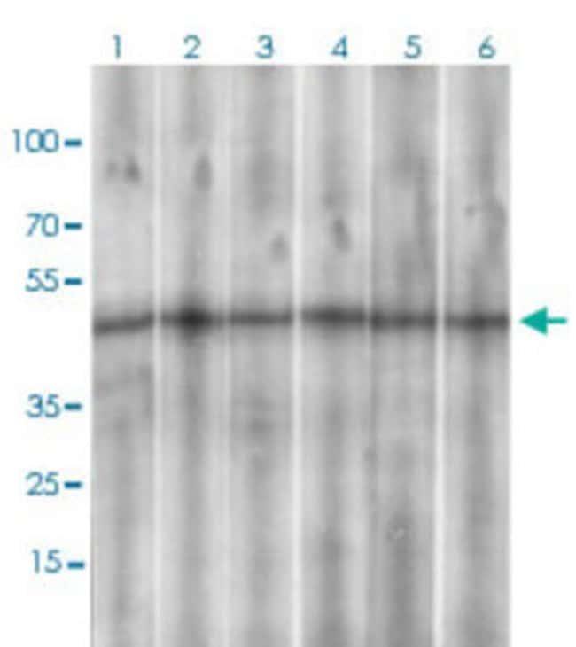 SSTR3 Mouse anti-Human, Rat, Clone: 7H8E5, Abnova 100μg; Unlabeled:Antibodies