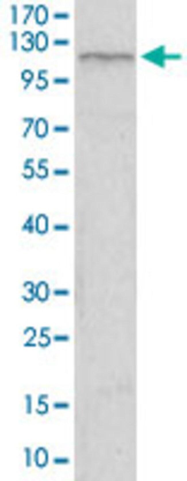TIE1 Mouse anti-Human, Clone: 8D12D2, Abnova 100μg; Unlabeled:Antibodies