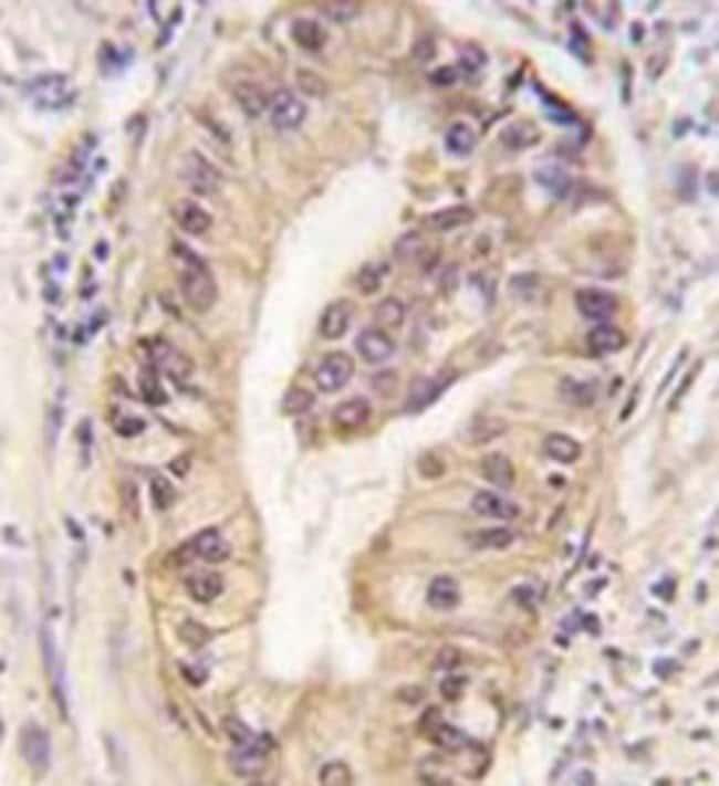 ATG16L1 Mouse anti-Human, Clone: 54CT27.2.6, Abnova 400μL; Unlabeled:Antibodies