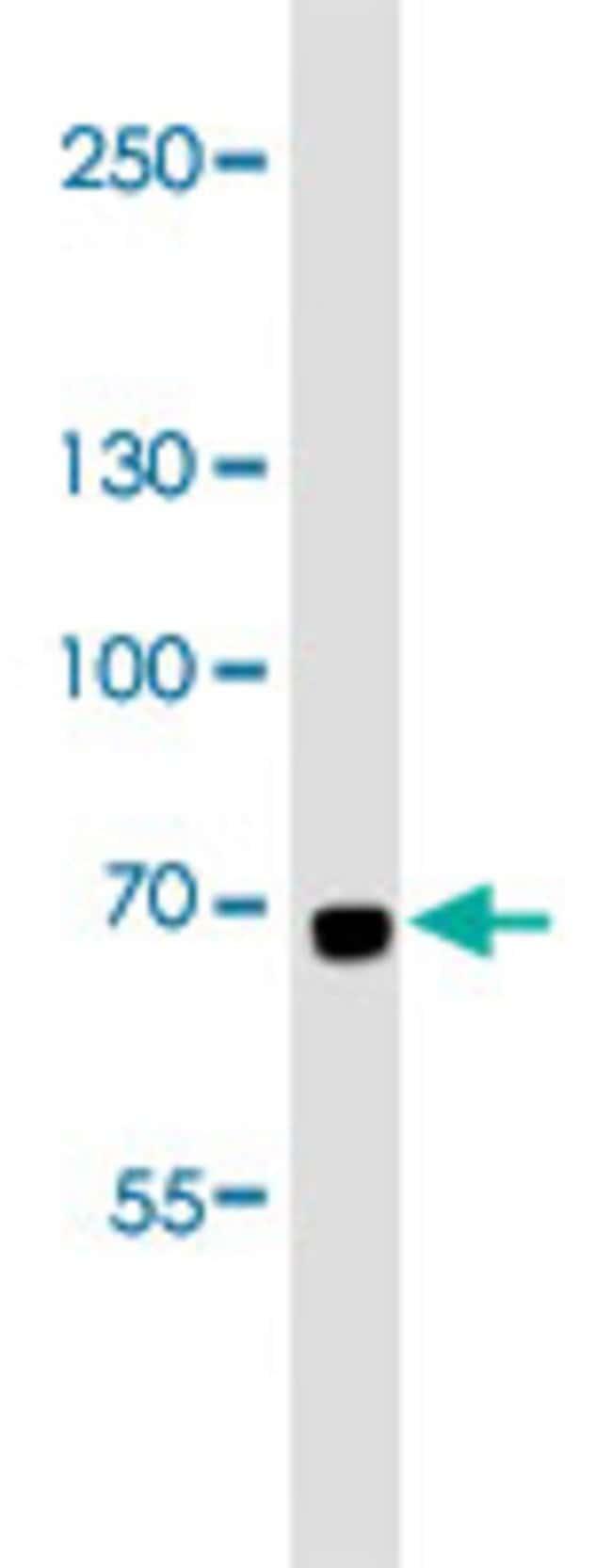 LTF Mouse anti-Human, Clone: 119CT80.1.1, Abnova 400μL; Unlabeled:Antibodies