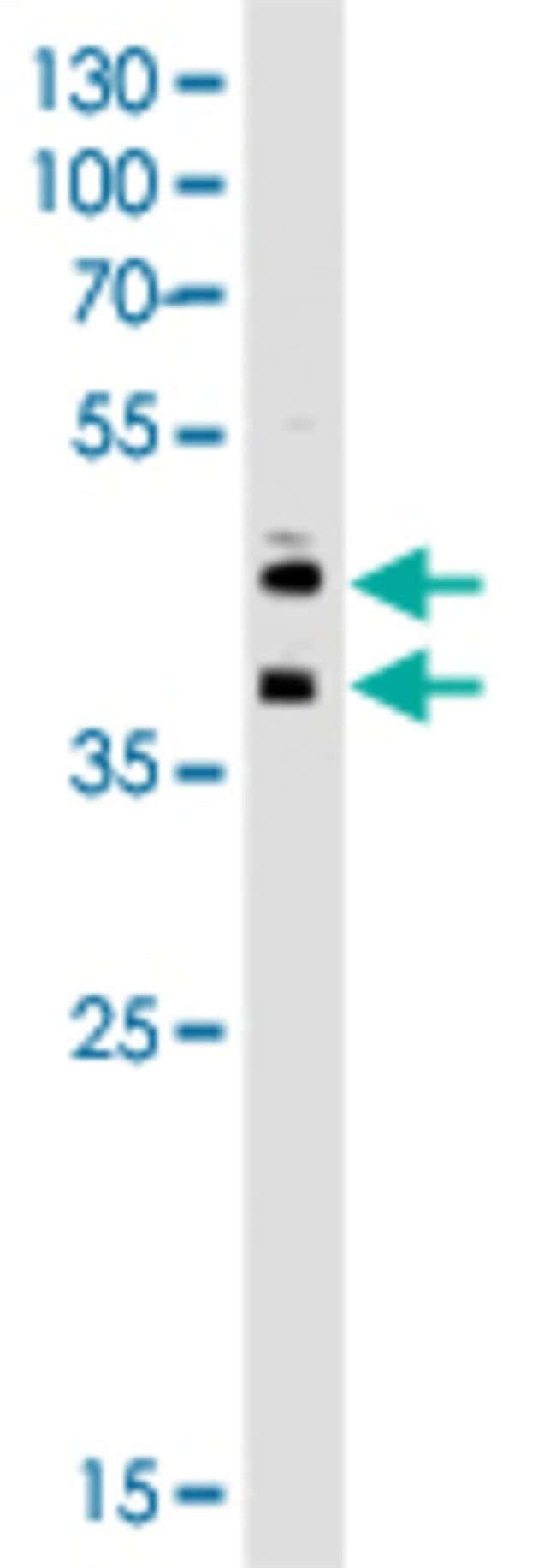 CD34 Mouse anti-Human, Clone: 132CT29.1.5, Abnova 400μL; Unlabeled:Antibodies