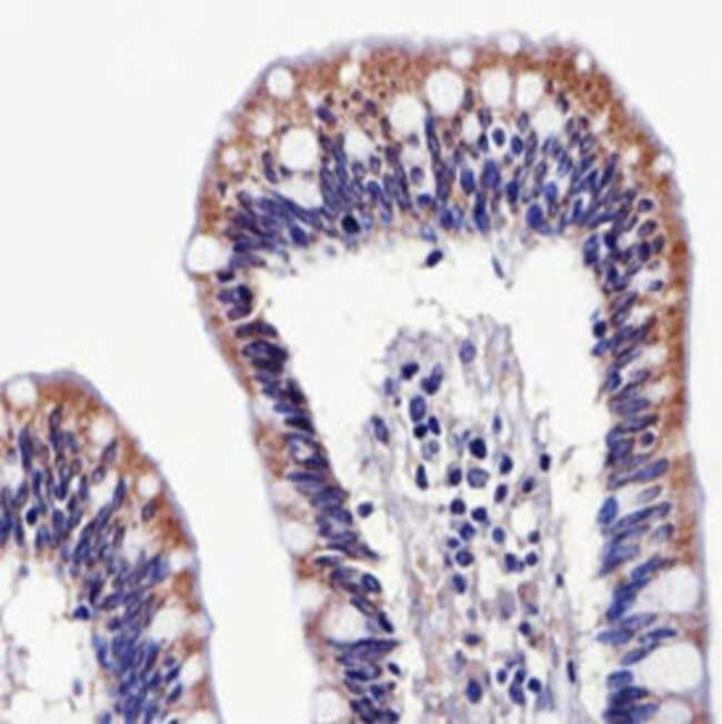 ALDH6A1 Mouse anti-Human, Clone: 147CT8.3.4, Abnova 400μL; Unlabeled:Antibodies