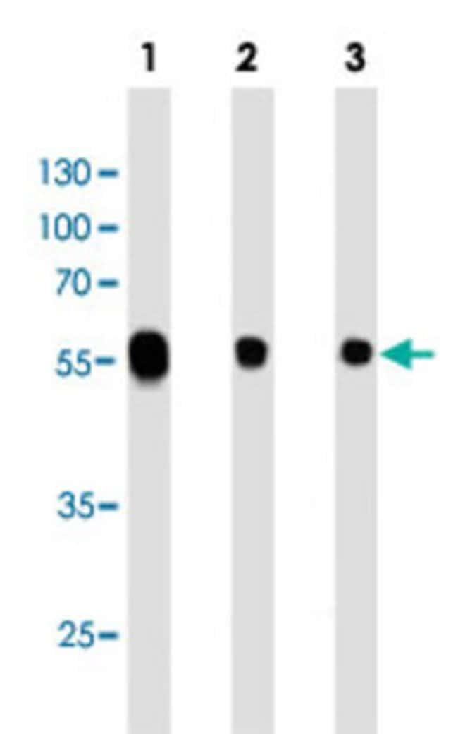 ALDH1A1 Mouse anti-Human, Clone: 152CT1.2.2, Abnova 400μL; Unlabeled:Antibodies