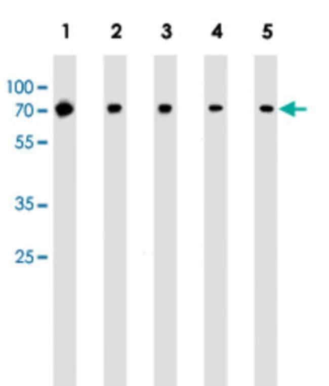 RPS6KB2 Mouse anti-Human, Mouse, Clone: 164CT21.2.2, Abnova 400μL; Unlabeled:Antibodies