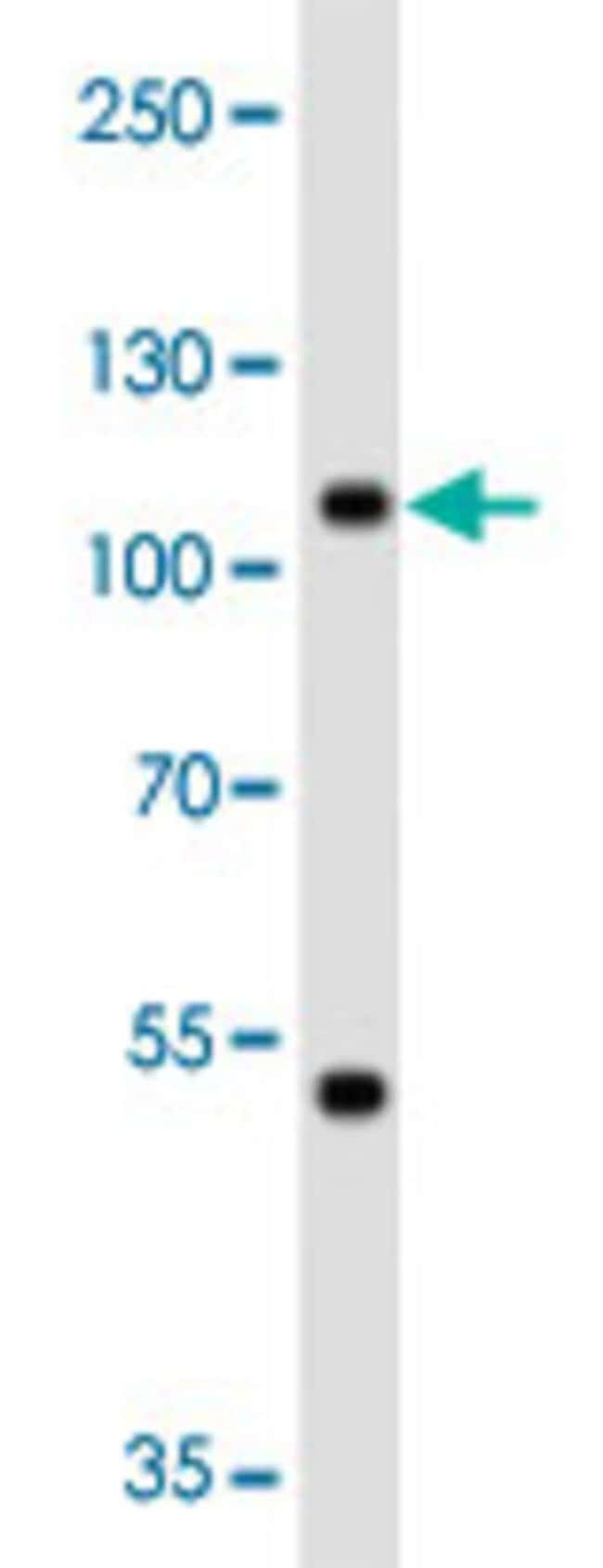 MAP4K3 Mouse anti-Human, Clone: 219CT8.3.1, Abnova 400μL; Unlabeled:Antibodies