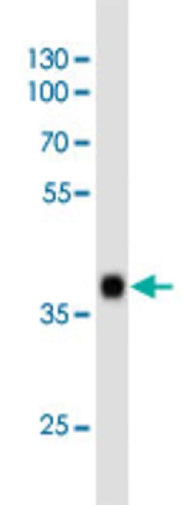 SOX2 Mouse anti-Human, Clone: 57CT23.3.4, Abnova 400μL; Unlabeled:Antibodies