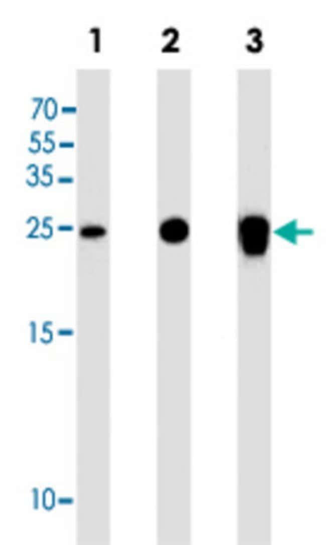 UCHL1 Mouse anti-Human, Mouse, Clone: 696CT2.1.4, Abnova 400μL; Unlabeled:Antibodies