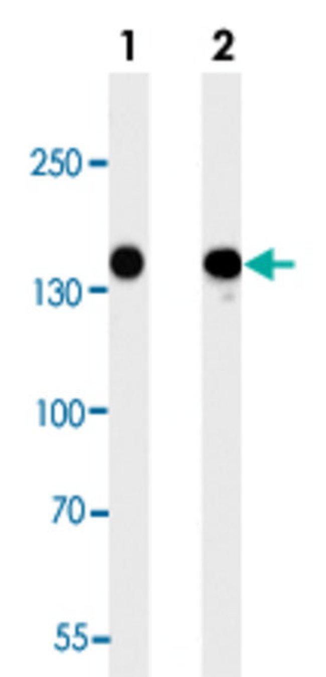 FLT4 Mouse anti-Human, Clone: 818CT12.1.1, Abnova 400μL; Unlabeled:Antibodies