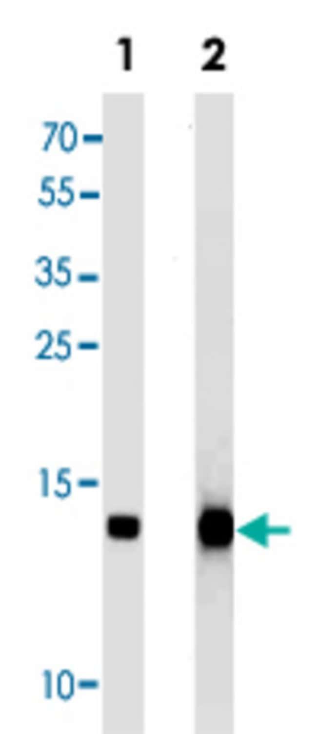 FABP4 Mouse anti-Human, Mouse, Clone: 1105CT1.1.1, Abnova 400μL; Unlabeled:Antibodies