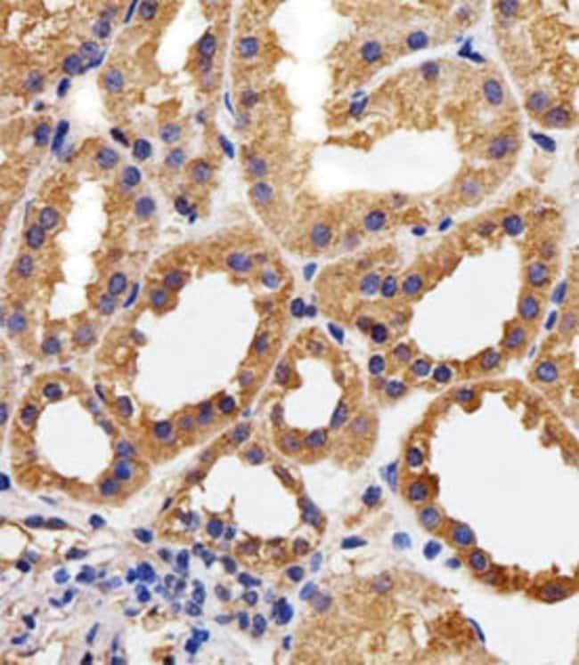 CAPN1 Mouse anti-Human, Clone: 1376CT809.24.85, Abnova 400μL; Unlabeled:Antibodies