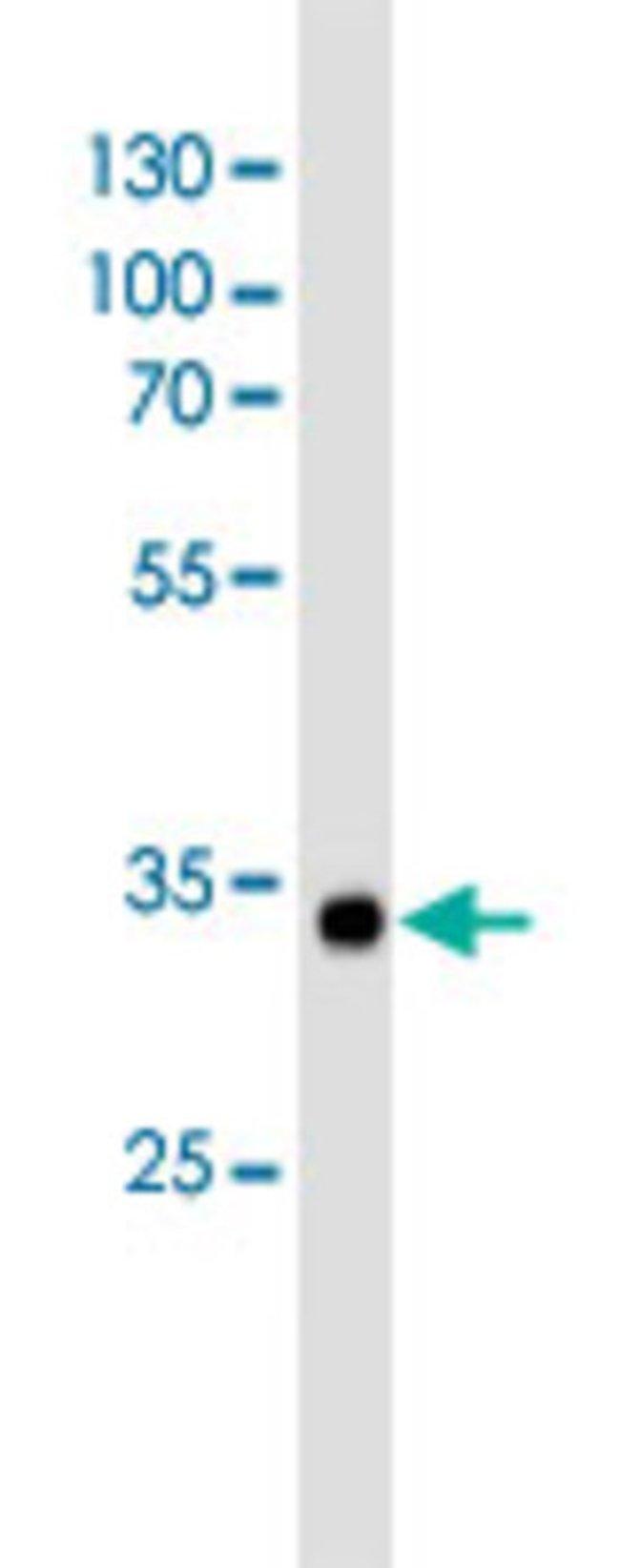 VWF Mouse anti-Human, Clone: 907CT12.1.9, Abnova 400μL; Unlabeled:Antibodies