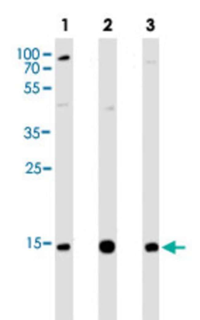 VAMP8 Mouse anti-Human, Clone: 1414CT354.12.23.93, Abnova 400μL; Unlabeled:Antibodies