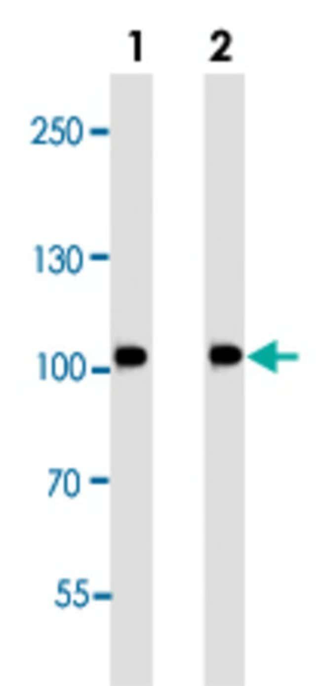 MUSK Mouse anti-Mouse, Rat, Clone: 1429CT456.173.44, Abnova 400μL; Unlabeled:Antibodies